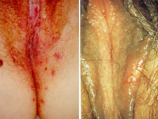 герпес половых органов женщины