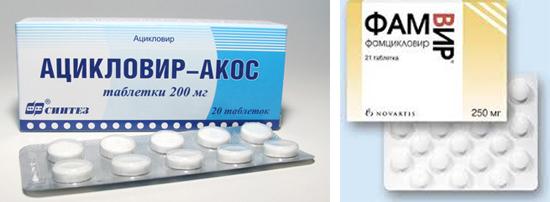 таблетки от герпеса Ацикловир и ФамВир