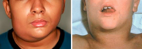 увеличение лимфоузлов при мононуклеозе