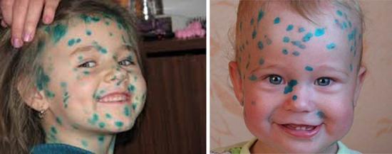 Высокозаразные заболевания у детей.