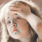Симптомы и лечение ветрянки у взрослых и детей