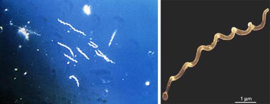 спирохеты рода Borrelia burgdorferi (боррелии)
