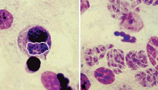 псевдоциста и колонии тахизоитов