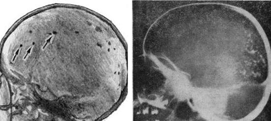 последствия токсоплазмоза мозга