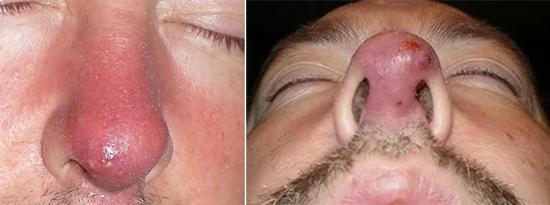 фурункулы на носу