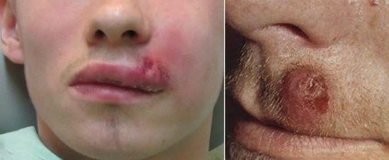 фурункулы на губе