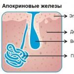 Симптомы и лечение гидраденита