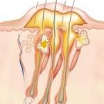 Проявления глубокой стафилодермии: фурункул, фурункулез и карбункул
