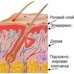 Проявления пиодермии и ее лечение