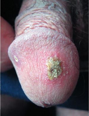 хроническая смешанная язвенная пиодермия