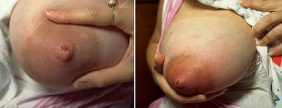 трещины сосков у кормящей матери - источник инфицирования золотистыми стафилококками