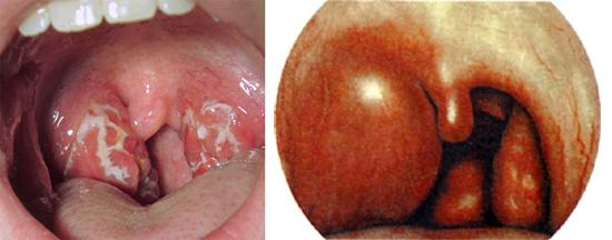 стафилококк во рту у детей