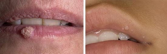 бородавки на губах