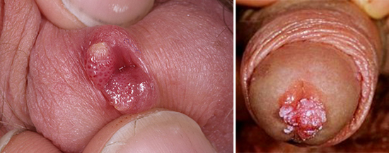 эндоуретральные кондиломы