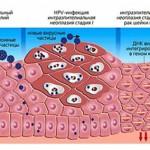 Симптомы и проявления вируса папилломы человека у женщин