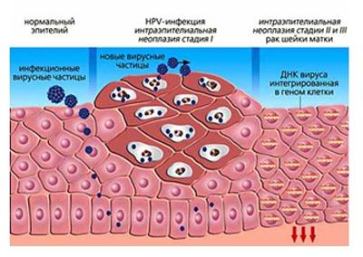 развитие вирус ВПЧ -инфекции