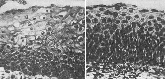 разные степени дисплазии шейки матки