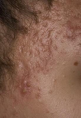 рубцовой ткань после акне