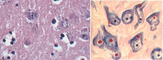 тельца Бабеша-Негри под микроскопом