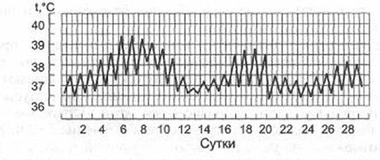 температурная кривая волнообразного типа