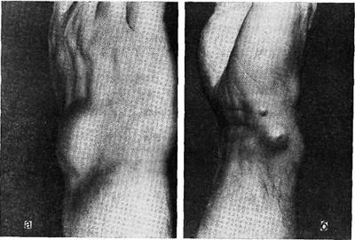 бруцеллез у человека (поражены сухожильные влагалища)