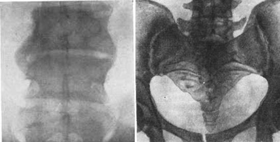 бруцеллез у человека