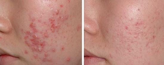 эффект от применения лазера при лечении прыщей на лице
