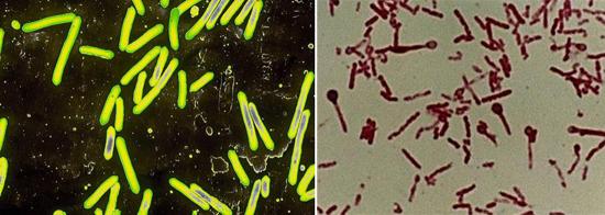 спороносные бактерии столбняка