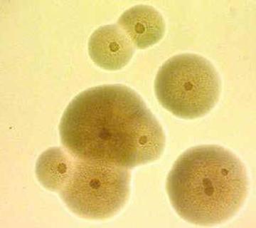 колонии уреаплазм