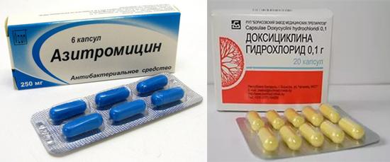 антибиотики при лечении уреаплазмоза