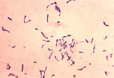 дифтерийные палочки под микроскопом