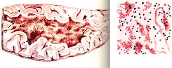 множественные кровоизлияния в ткань мозга