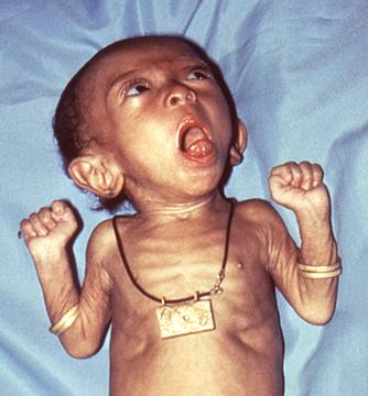 при коклюше грудные дети теряют вес