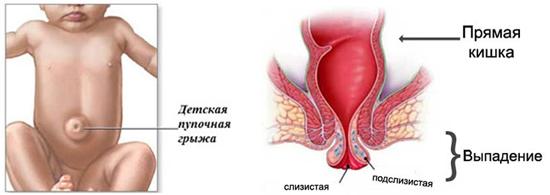 пупочная грыжа и выпадение слизистого прямой кишки - редкие осложнения коклюша