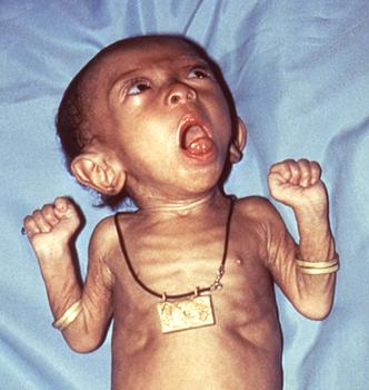 коклюш у грудного ребенк