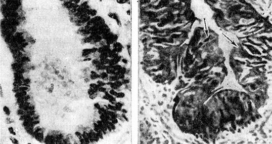 слева вид нормального бронха, справа - в состоянии спазма