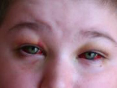 кровоизлияние в области конъюнктивы - симптом коклюша