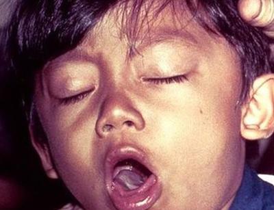 приступ кашля при коклюше