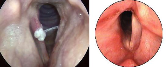 дифтерия гортани