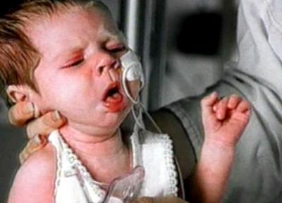 кашель - основной симптом коклюша