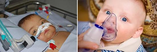 изоляция больного ребенка