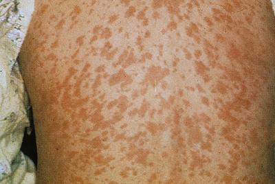 сыпь при кори: стадия пигментации