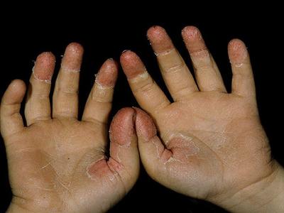 симптом скарлатины - шелушение кожных покровов