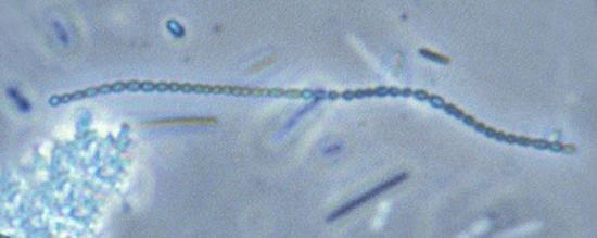 стрептококки