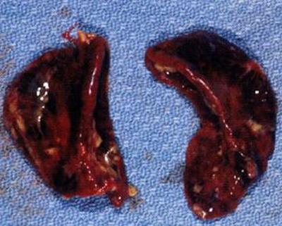 кровоизлияния в надпочечники