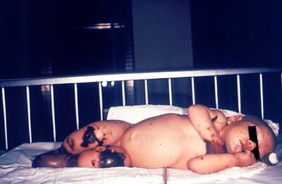 менингококковая инфекция у ребенка с тяжелая форма (фото)