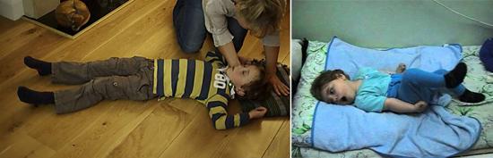 эпилептиформные припадки у детей