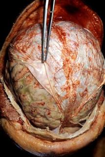 гнойный менингит (фото)