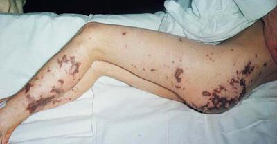 менингококцемия у взрослого (фото)
