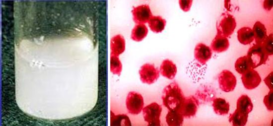 ликвора при гнойном менингите и менингококки
